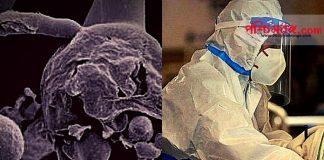 ব্ল্যাক ফাঙ্গাস, পশ্চিমবঙ্গ, black fungus, west bengal, ব্ল্যাক ফাঙ্গাস রোগের লক্ষণ